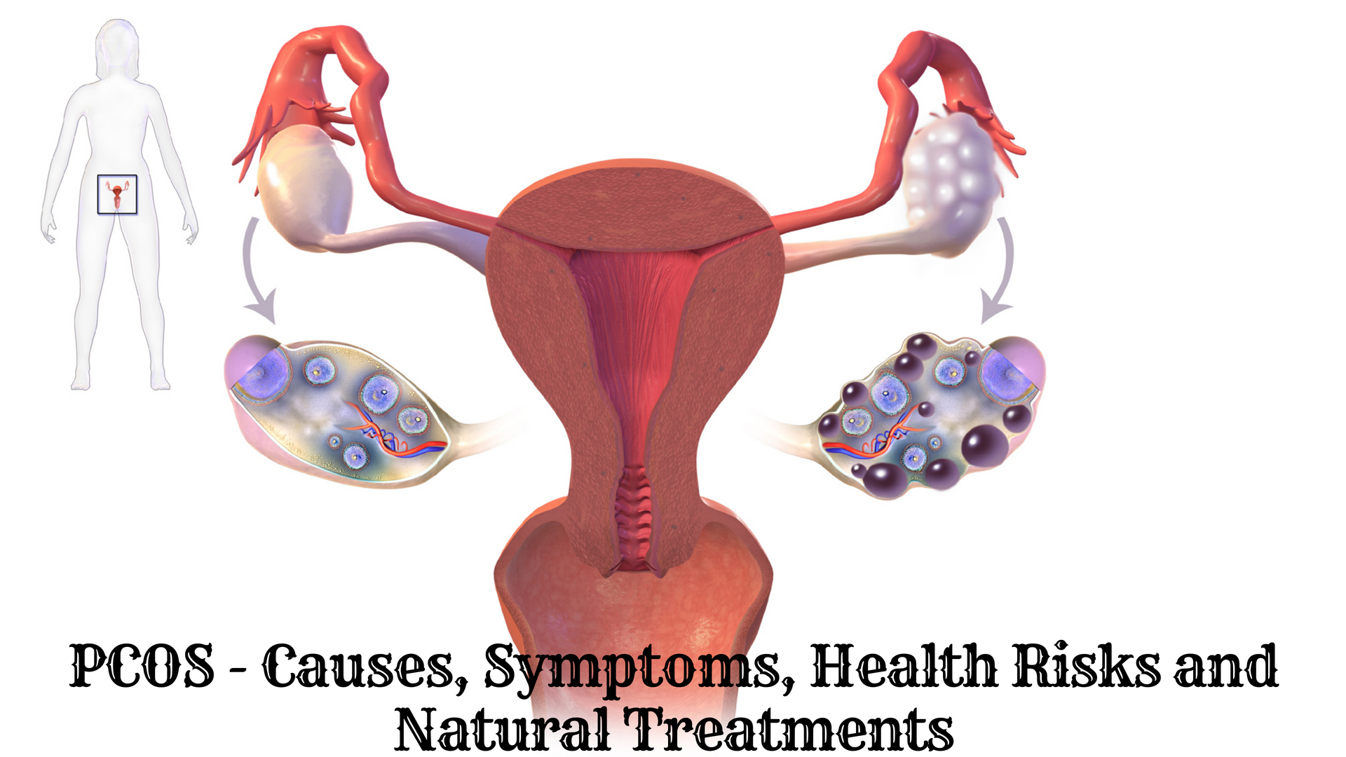 PCOS Natural Treatment – PCOS Symptoms, Causes, and Health Risks
